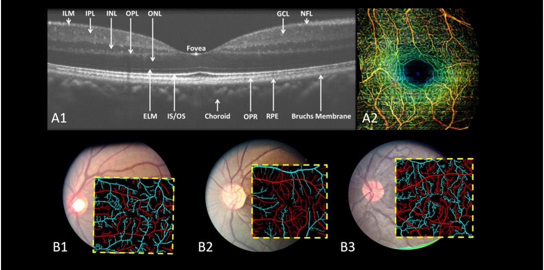 Using quantitative OCTA we can diagnosis retinal diseases