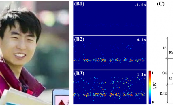 Guangying Ma publishes his first paper on the metabolism of photoreceptors