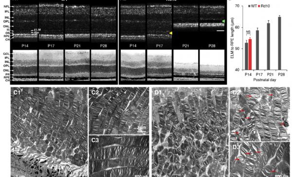 Retinal degeneration using electro microscopy