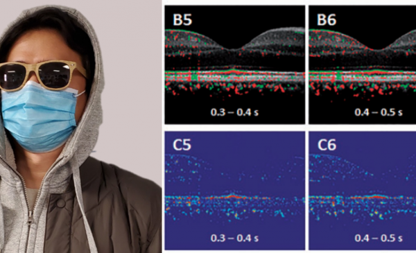 Functional mapping of photoreceptor physiology is important for better disease diagnosis and treatment assessment