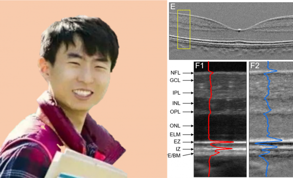 Guangying Ma is a future Nobel prize laureate! I predicted it first